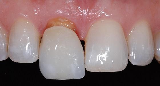 Гниет зуб под пломбой